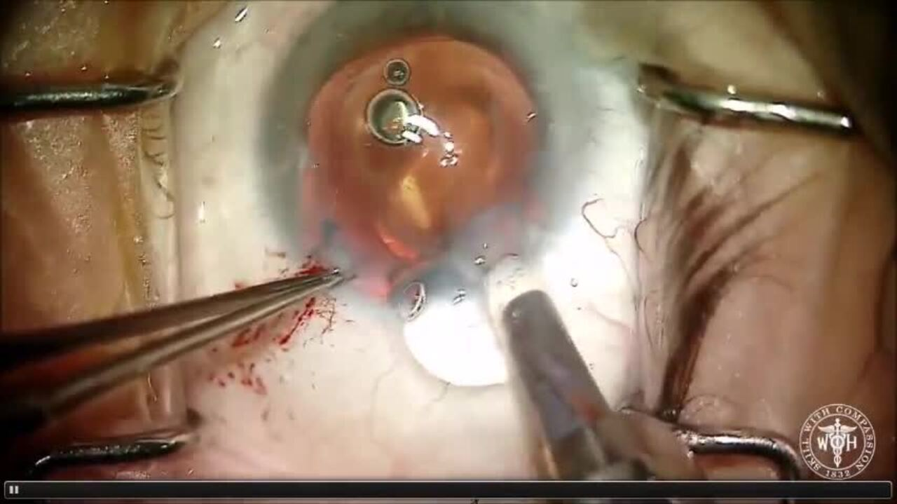 SURGICAL VIDEO: Artificial iris implanted into sulcus during cataract surgery