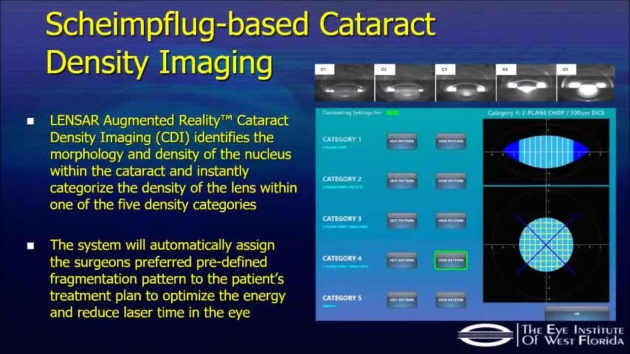 VIDEO: Cataract surgery with the Lensar femtosecond laser platform