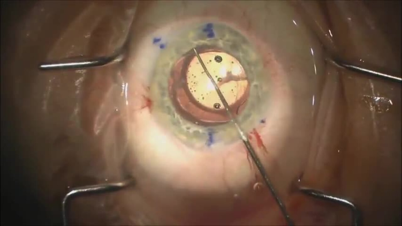 SURGICAL VIDEO: Toric IOL malrotation realignment pearls