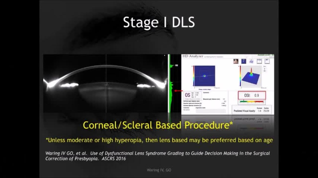 VIDEO: Diagnosis, staging and management of dysfunctional lens syndrome