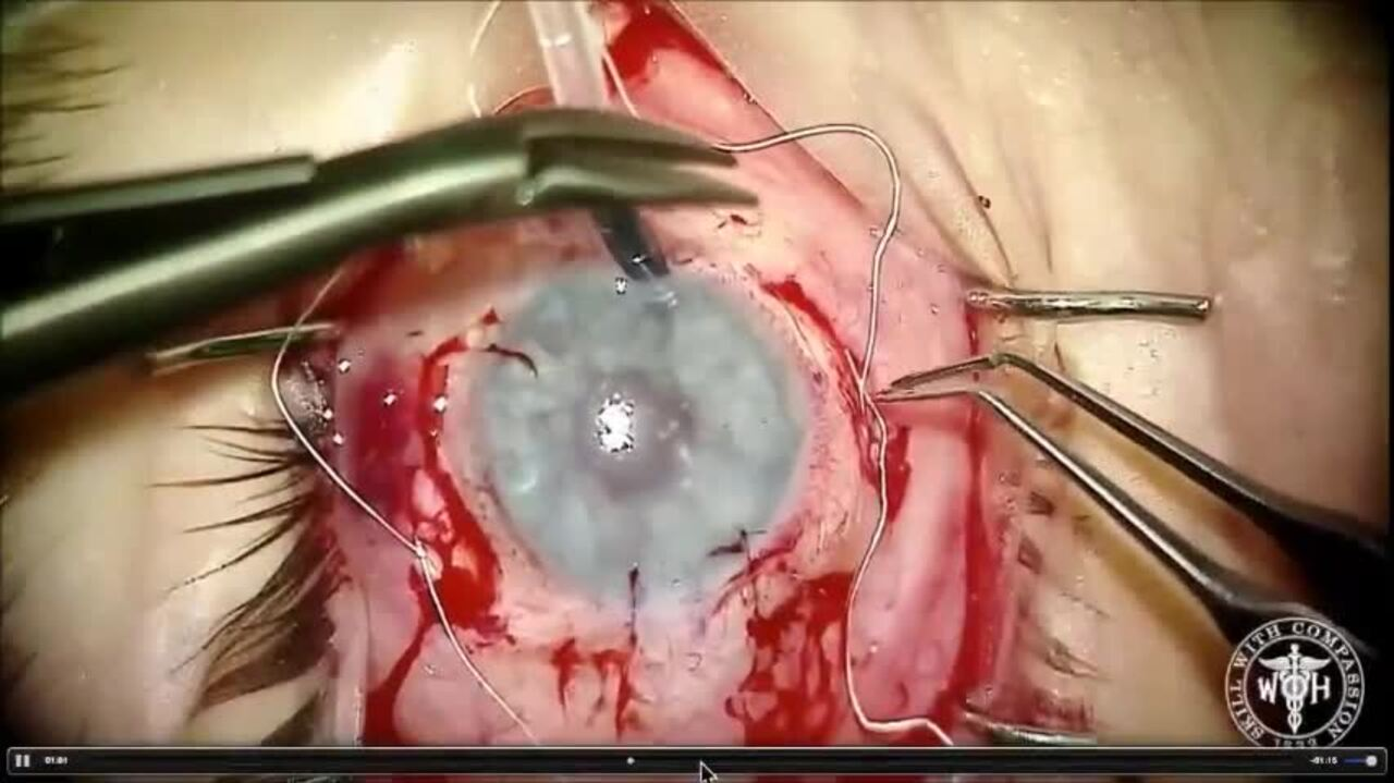 SURGICAL VIDEO: Iris prosthesis sutured to IOL, implanted during cataract surgery