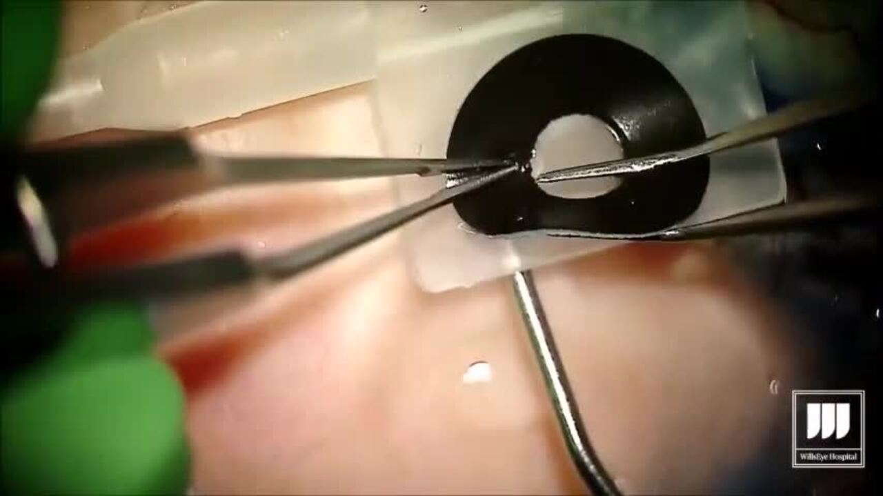 SURGICAL VIDEO: Iris prosthesis implant surgery