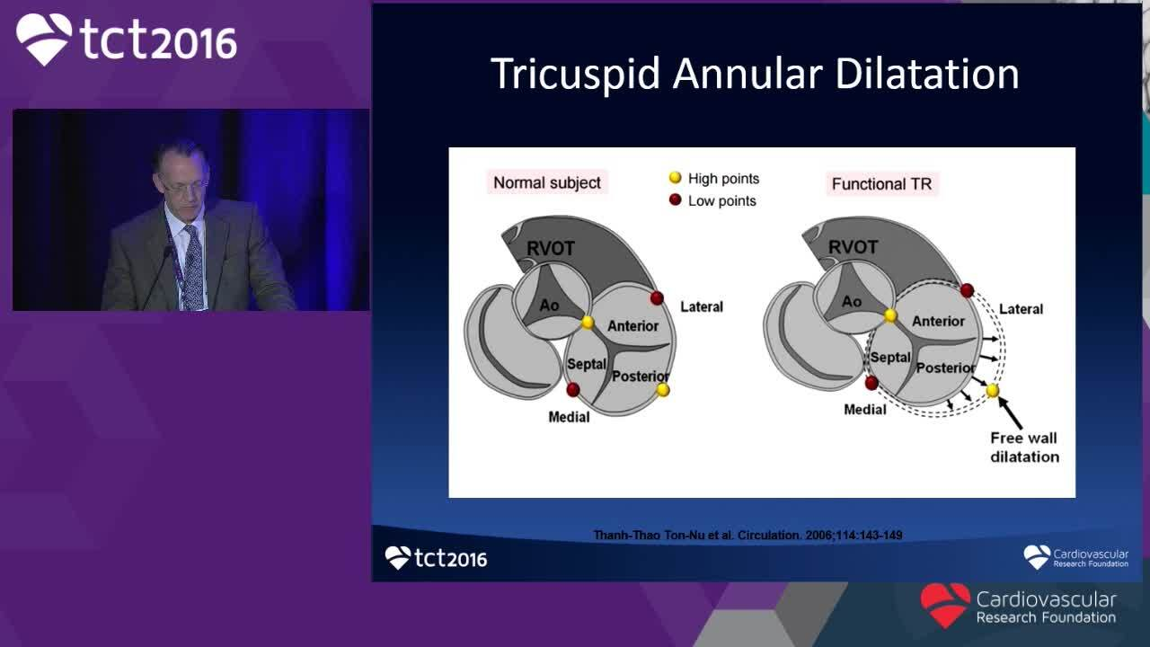 Anatomy and Pathology of the Tricuspid Valve With a Focus on ...