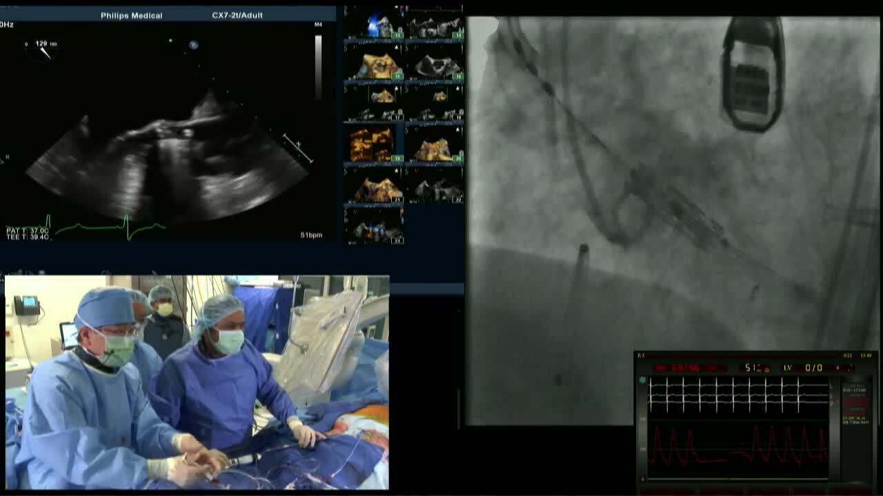 SHDS 2018: Live Case #5: Cedars-Sinai Medical Center, Los Angeles, CA - TAVR
