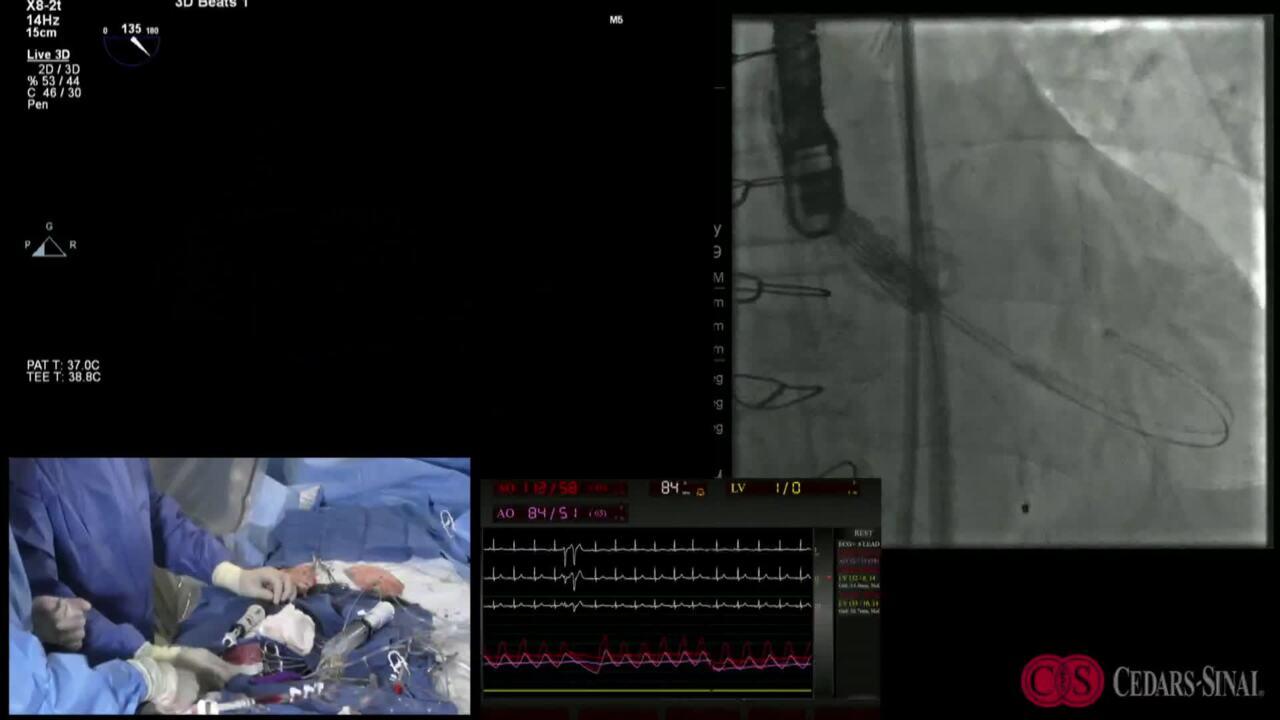 TVT 2019: Live Case #12:Cedars-Sinai Medical Center — TAVR - BAV AR