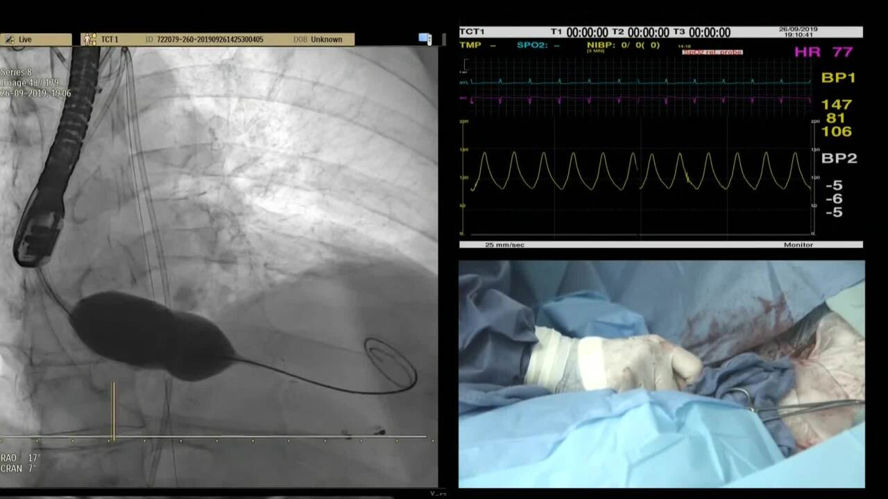 Live Case: 55 y/o Male with Severe AS Bicuspid - Hadassah Medical Center, Hadassah, Israel (SHD)