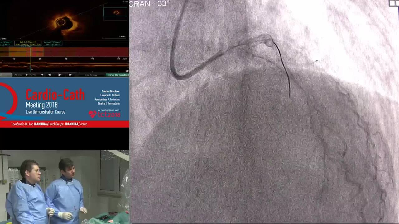 Multivessel PCI Ippokrateio- Hospital University of Athens Greece