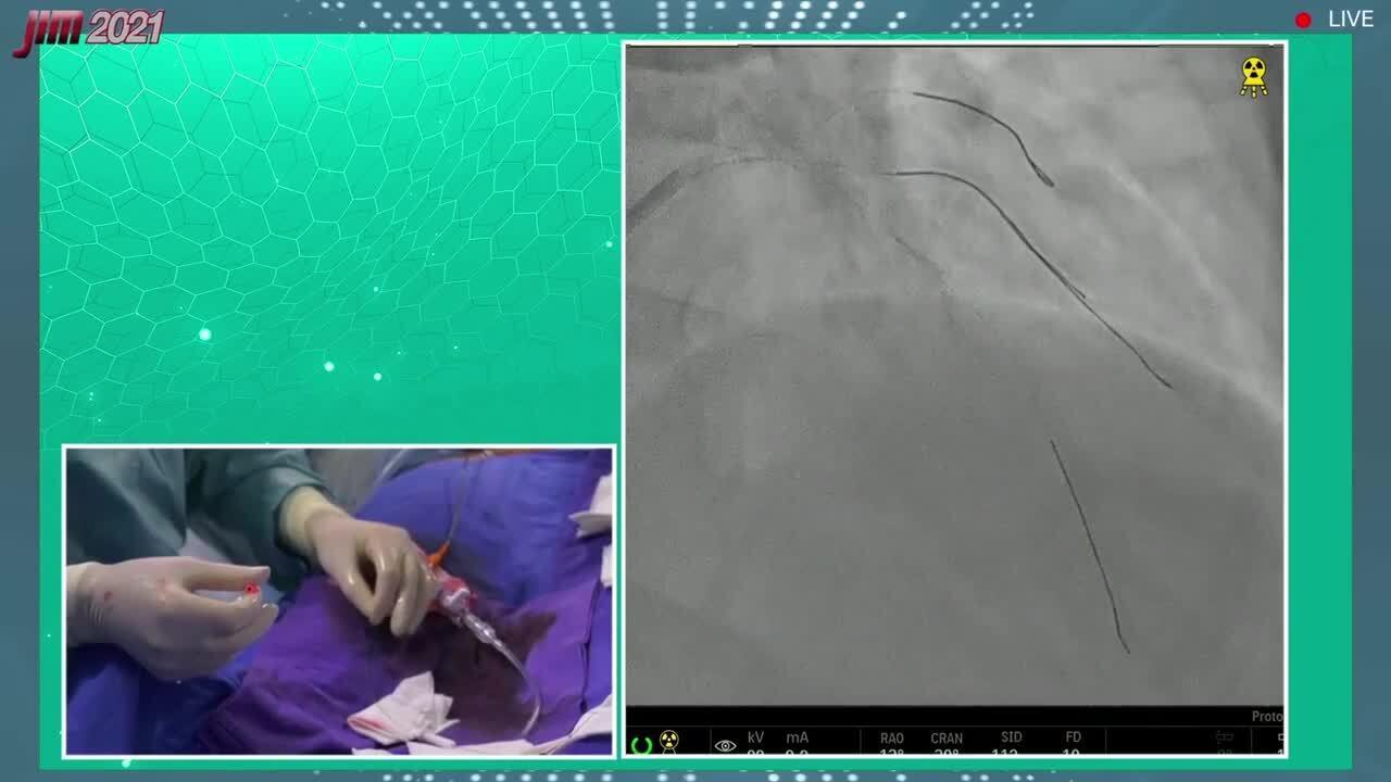 LAD-Diagonal Bifurcation Lesion PCI