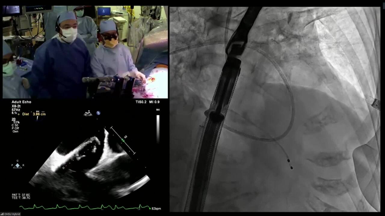 LIVE CASE #13 Transcatheter Mitral Valve Replacement (TMVR)