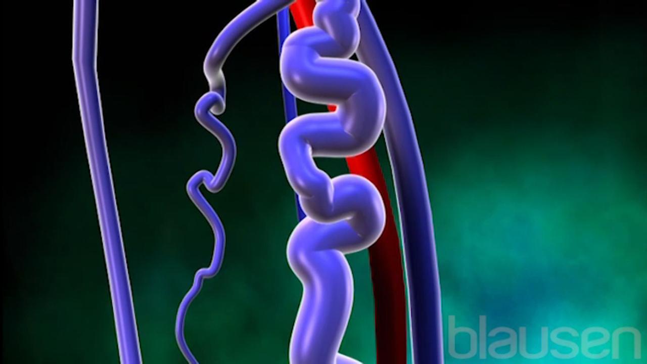 Varicose Veins Blausen Medical