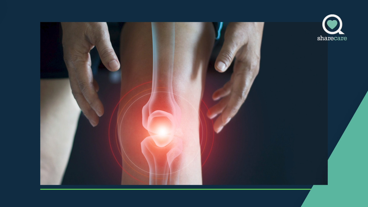 The Connection Between Psoriatic Arthritis and Psoriasis