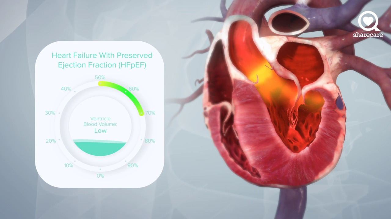 A Virtual Look at What Causes Heart Failure