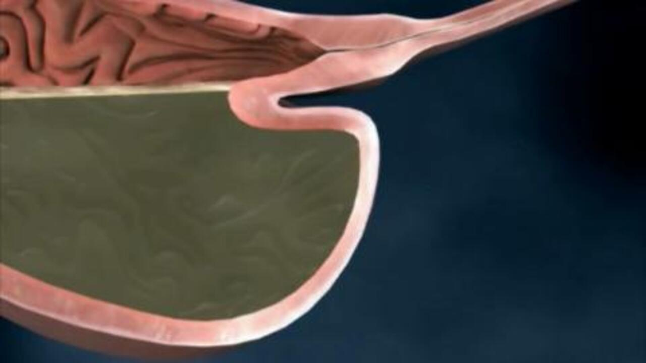What Are GERD and Heartburn?