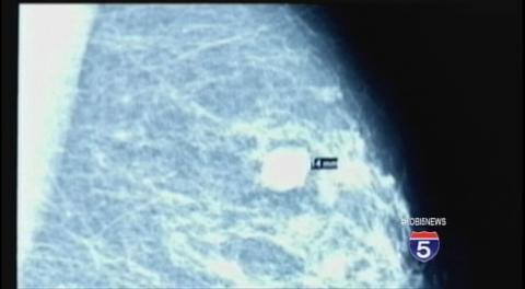 Is There a Test That Can Identify Which Patients Will Relapse from Breast Cancer?