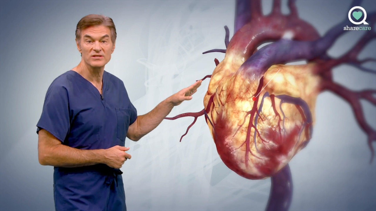 A Virtual Journey Through Coronary Artery Disease