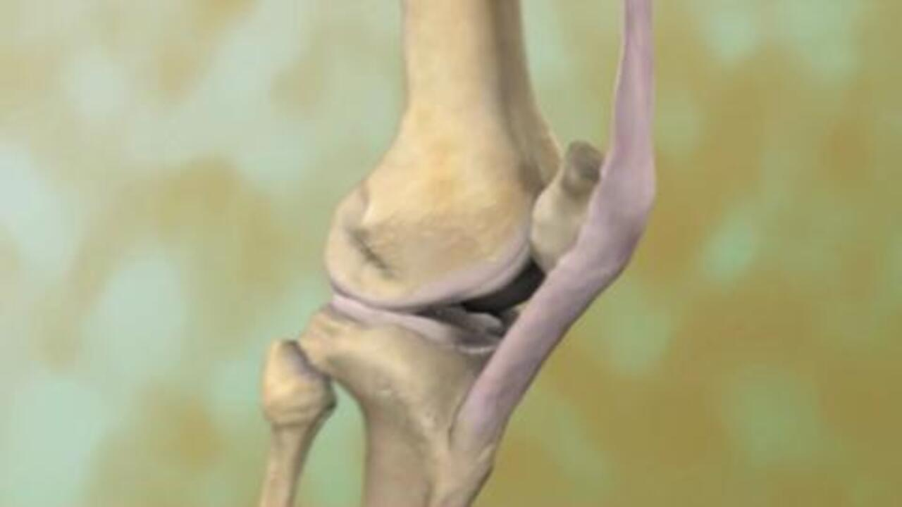 Do X-Rays Show Wearing Down of Cartilage Due to Arthritis?