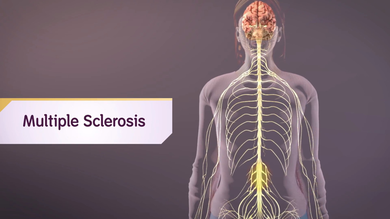 Multiple Sclerosis: A Virtual Look Inside the Body