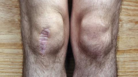 How Common Is Surgery to Relieve Knee Pain?