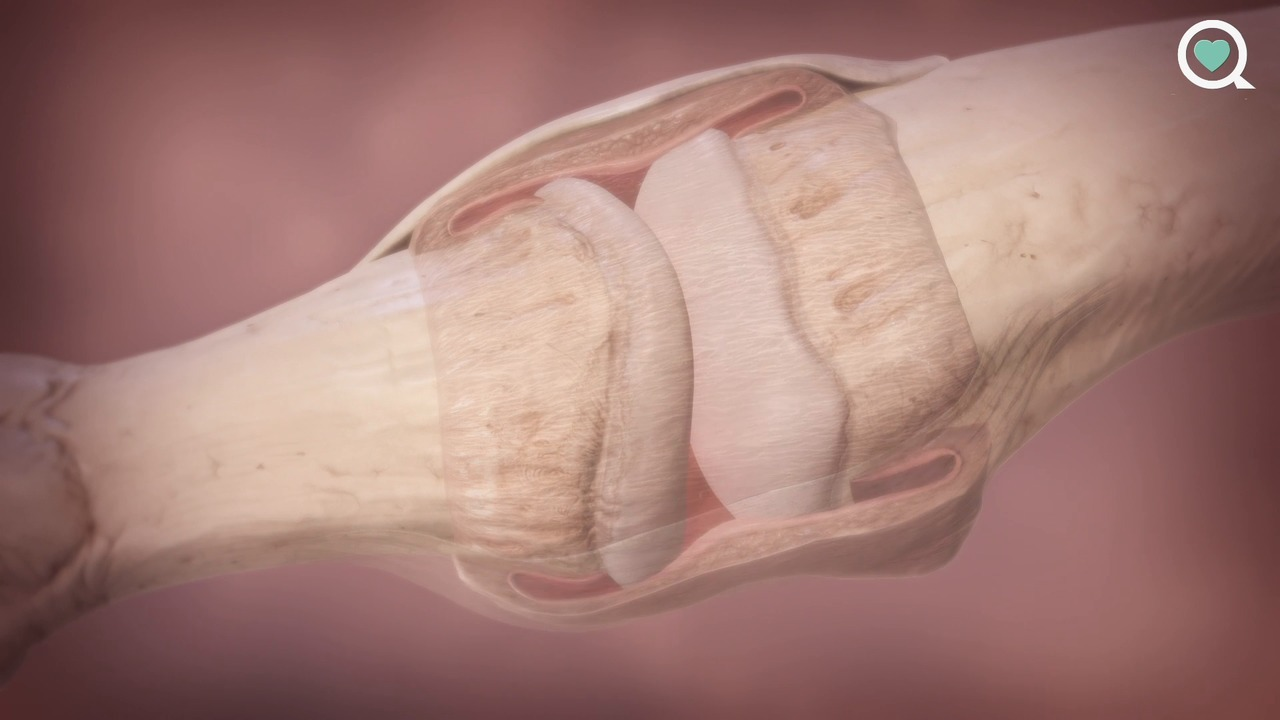 A Virtual Look at Psoriatic Arthritis