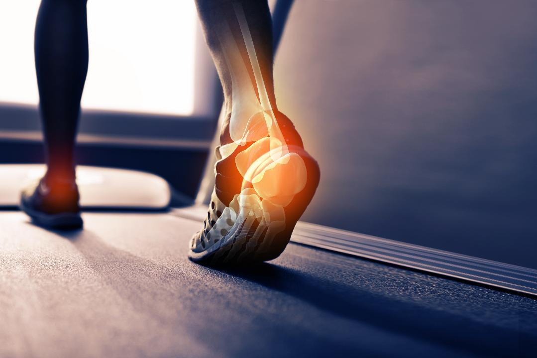 Does Psoriatic Arthritis Prevent Exercise?