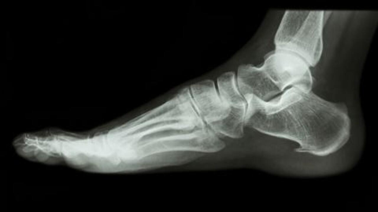Got Plantar Fasciitis? Get Heel-Pain Help