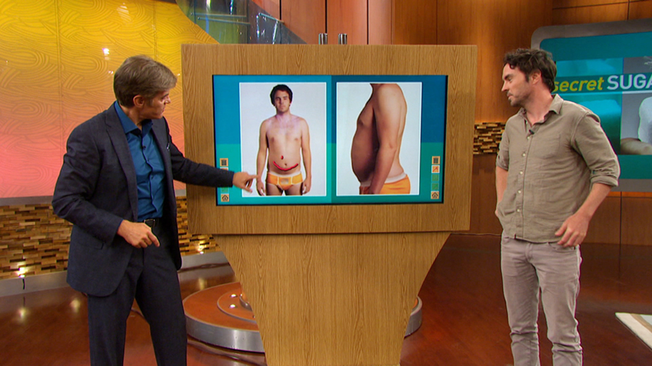 How Hidden Sugars Affected Damon Gameau's Health in 60 Days