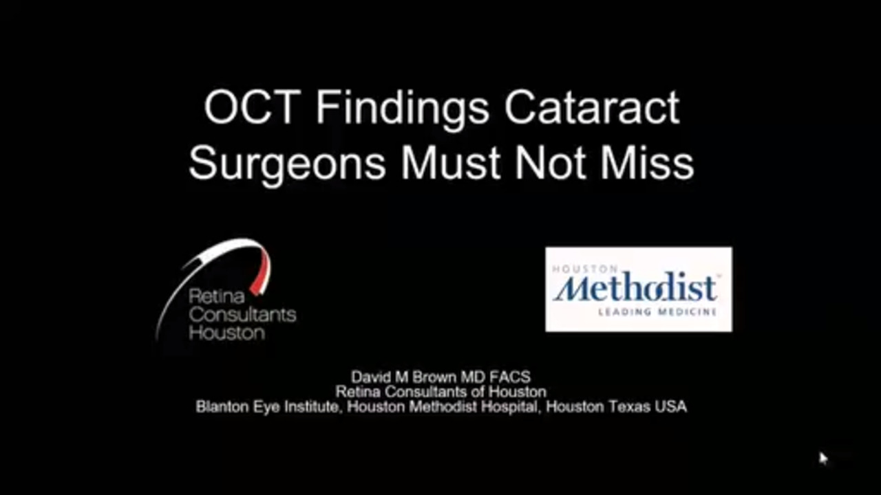 VIDEO: OCT findings not to miss