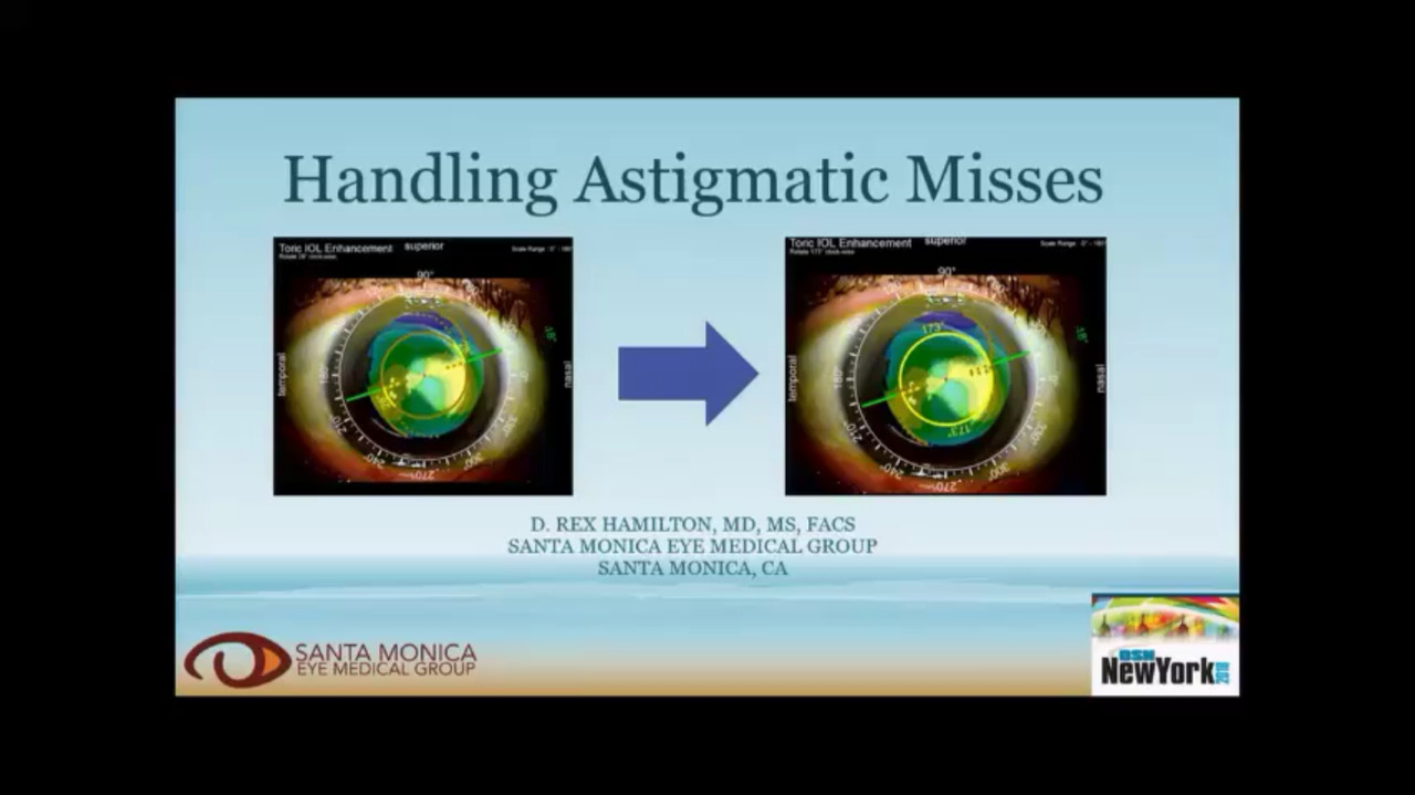 VIDEO: How to handle enhancements for astigmatism correction