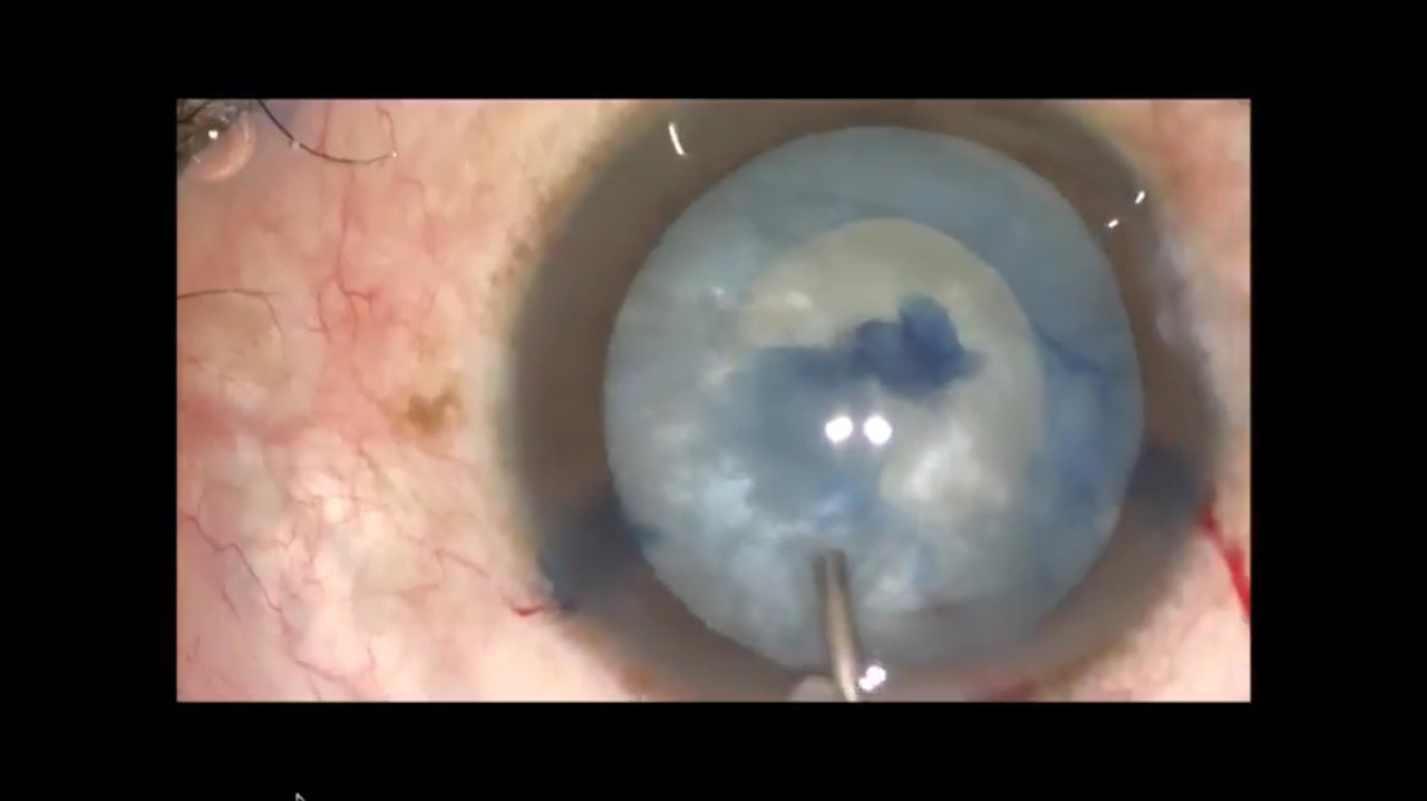 Three videos show how to handle complications of capsulorrhexis in cataract surgery