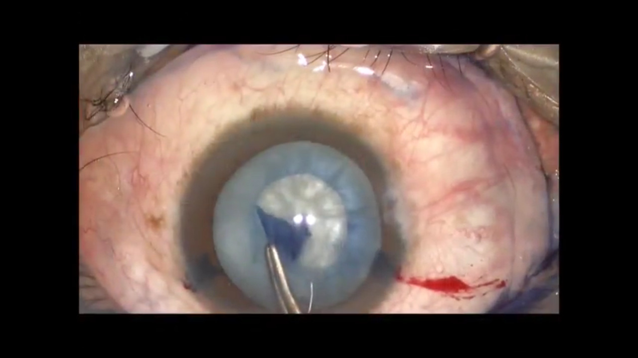 VIDEO: How to handle a capsulorrhexis complication