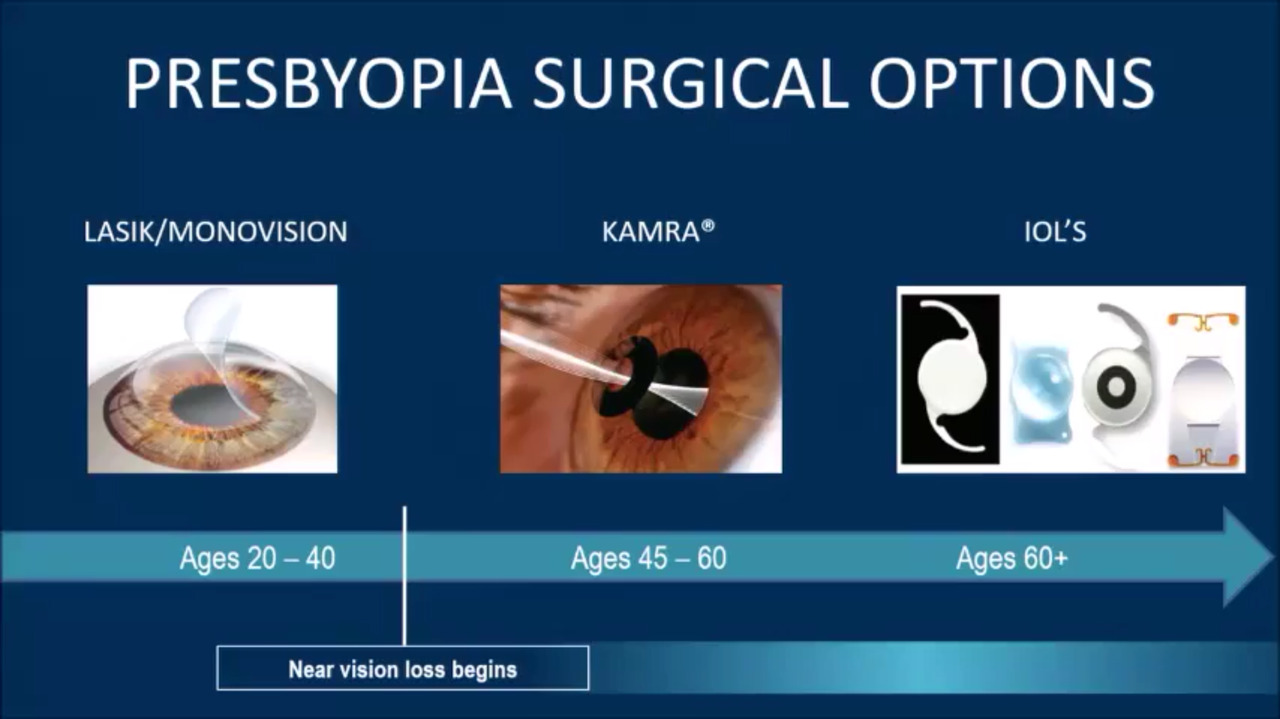 VIDEO: Lindstrom shares experience with presbyopia-correcting strategies