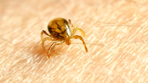 DOCTORS REMOVE A TICK FROM INSIDE A 9-YEAR-OLD BOY'S EAR DRUM