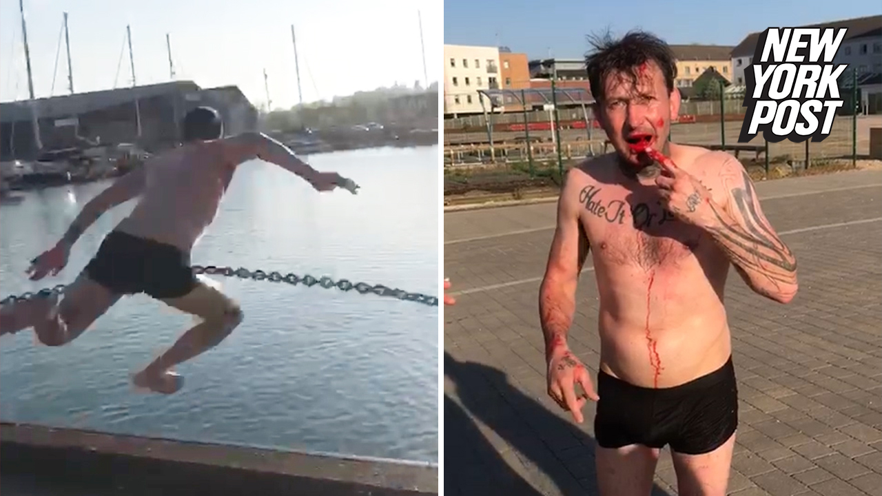 Man's attempt to jump off a dock ends in a bloody mess