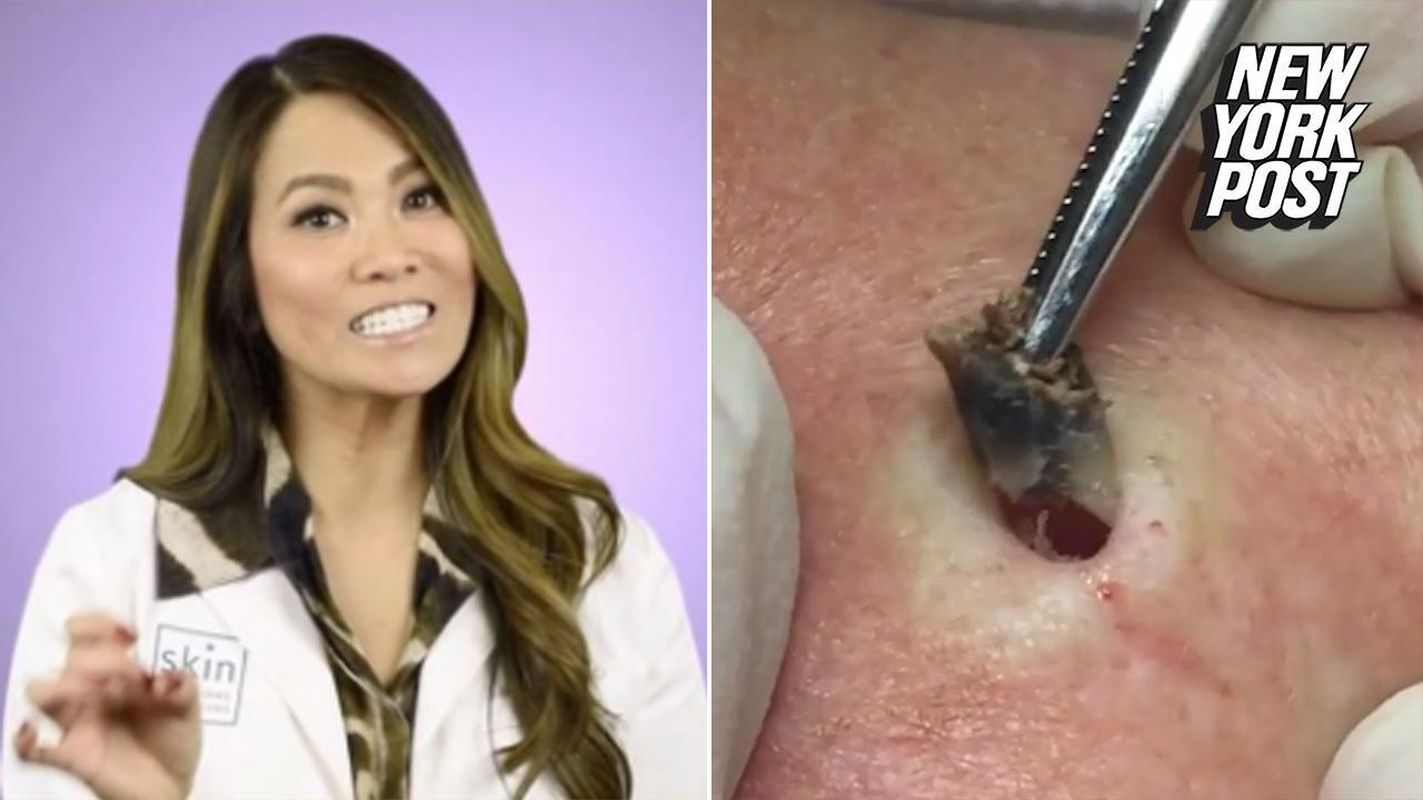 You'll never pop a pimple again after this woman's