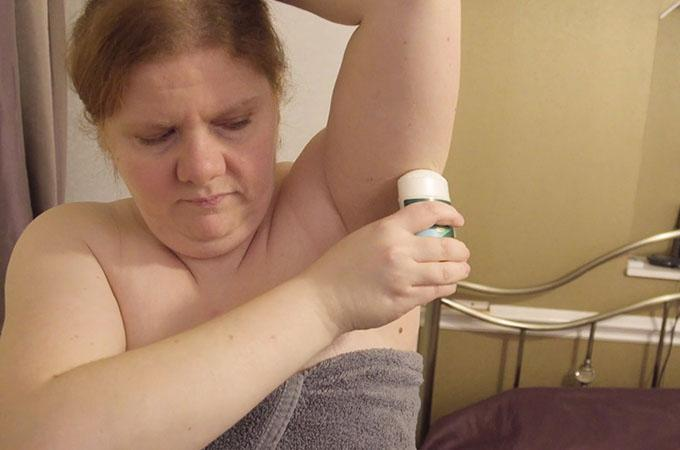 This woman suffers from a disease that makes her smell like fish