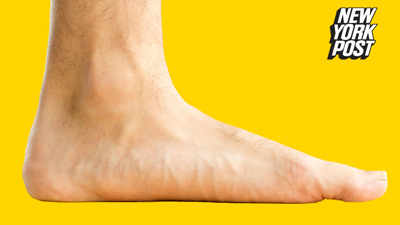 Ronda Rouseys Yellow And Purple Feet Are Internet Mystery