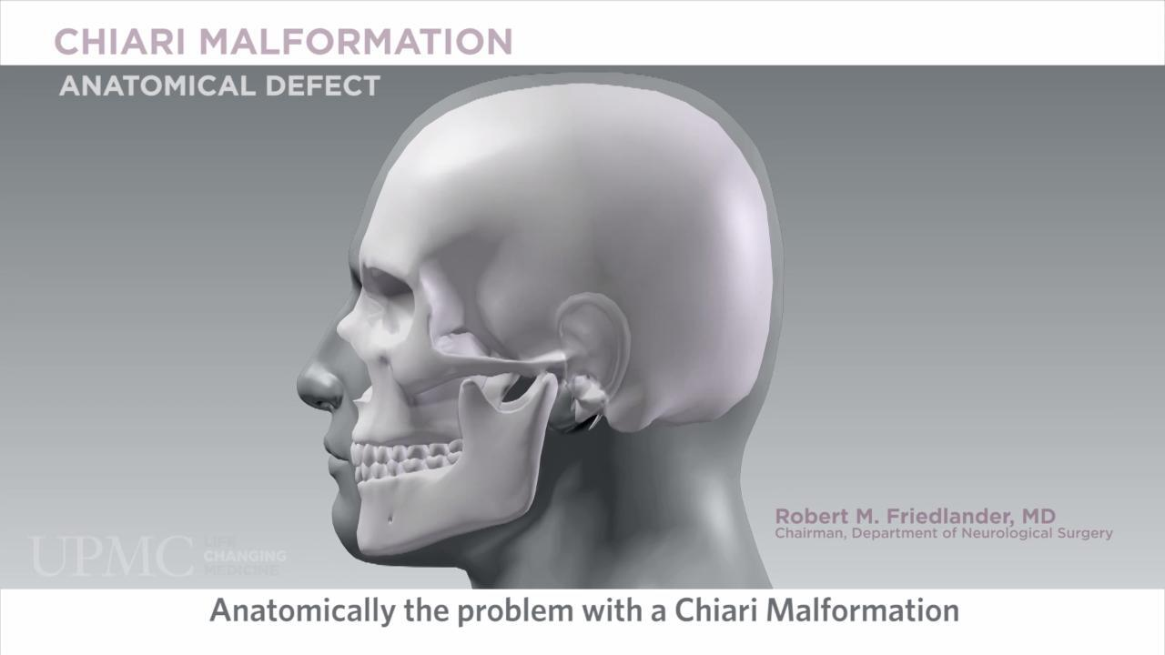 What Is Chiari Malformation? Symptoms, Treatment, and More