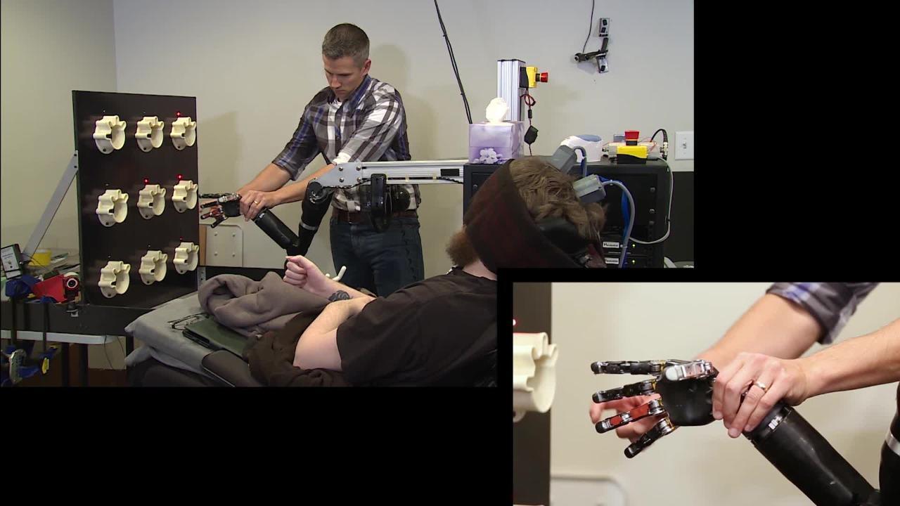 Pitt-UPMC Team Helps Paralyzed Man Feel Again with Robotic Arm