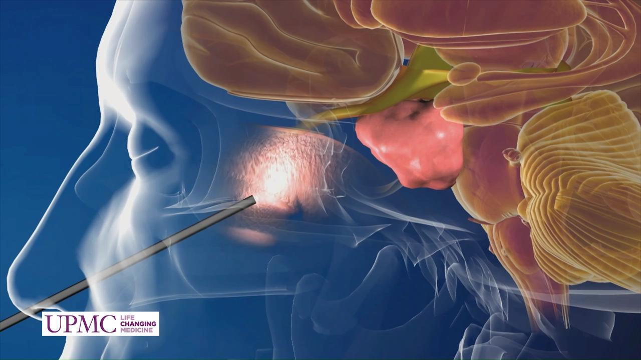 Endoscopic Endonasal Approach: A Surgical Technique for Hard-to-Reach Tumors
