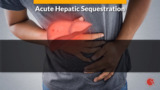 Acute Cerebrovascular Accident in Sickle Cell Disease, Acute Complications Part 3