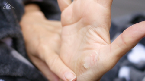 The types of burns and how to treat them
