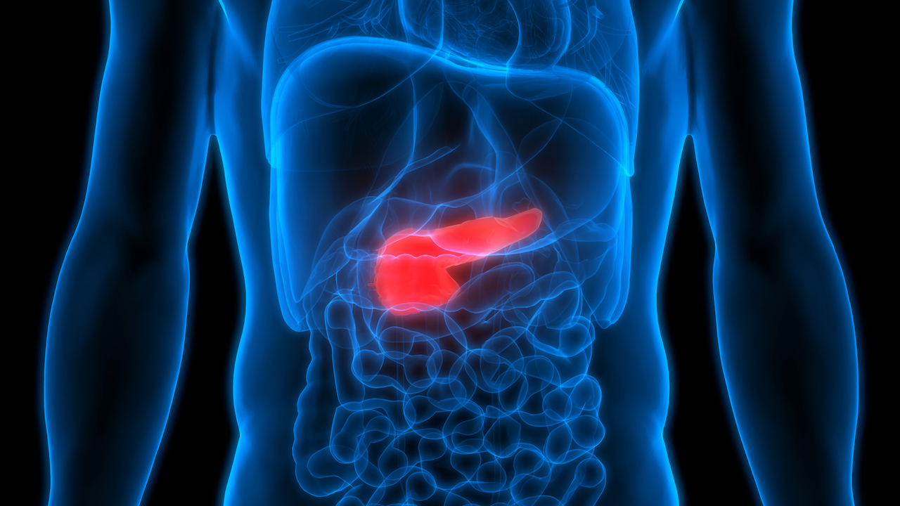 Pancreatic cancer: signs and symptoms of fourth leading