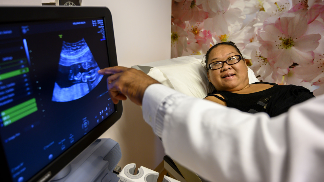 Donated ultrasound machines at south Sac clinic will help region's poorest moms-to-be