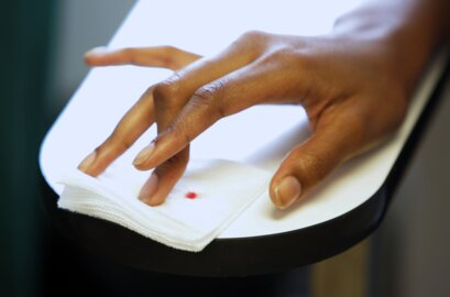 New treatments being developed for sickle cell disease