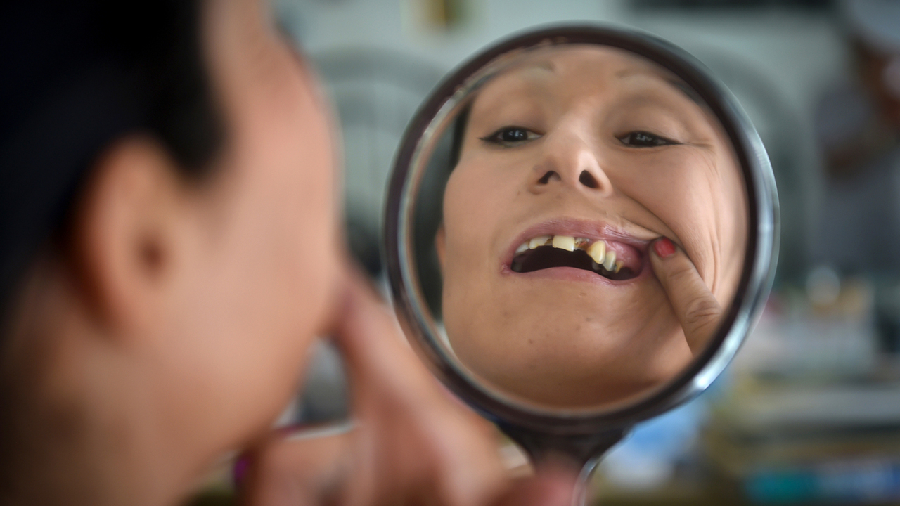 How bad teeth and a lack of dental care can lead to discrimination and poverty