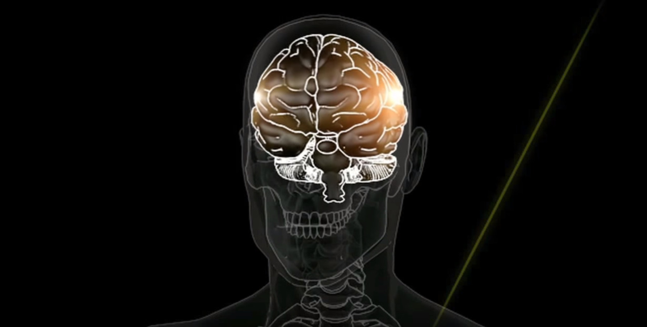 Dr. Wood: Heads up! Here are the facts about concussions and brain injuries