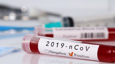 Four more test positive for COVID-19 in Whatcom County, state reports Saturday