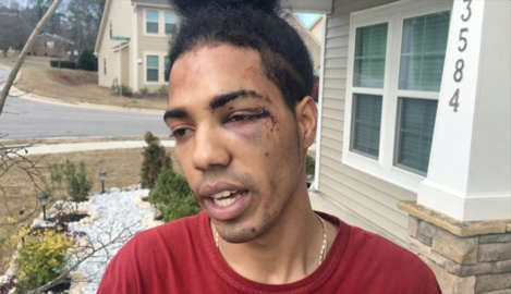 Raleigh man shown in video being pulled from car by police gives his account