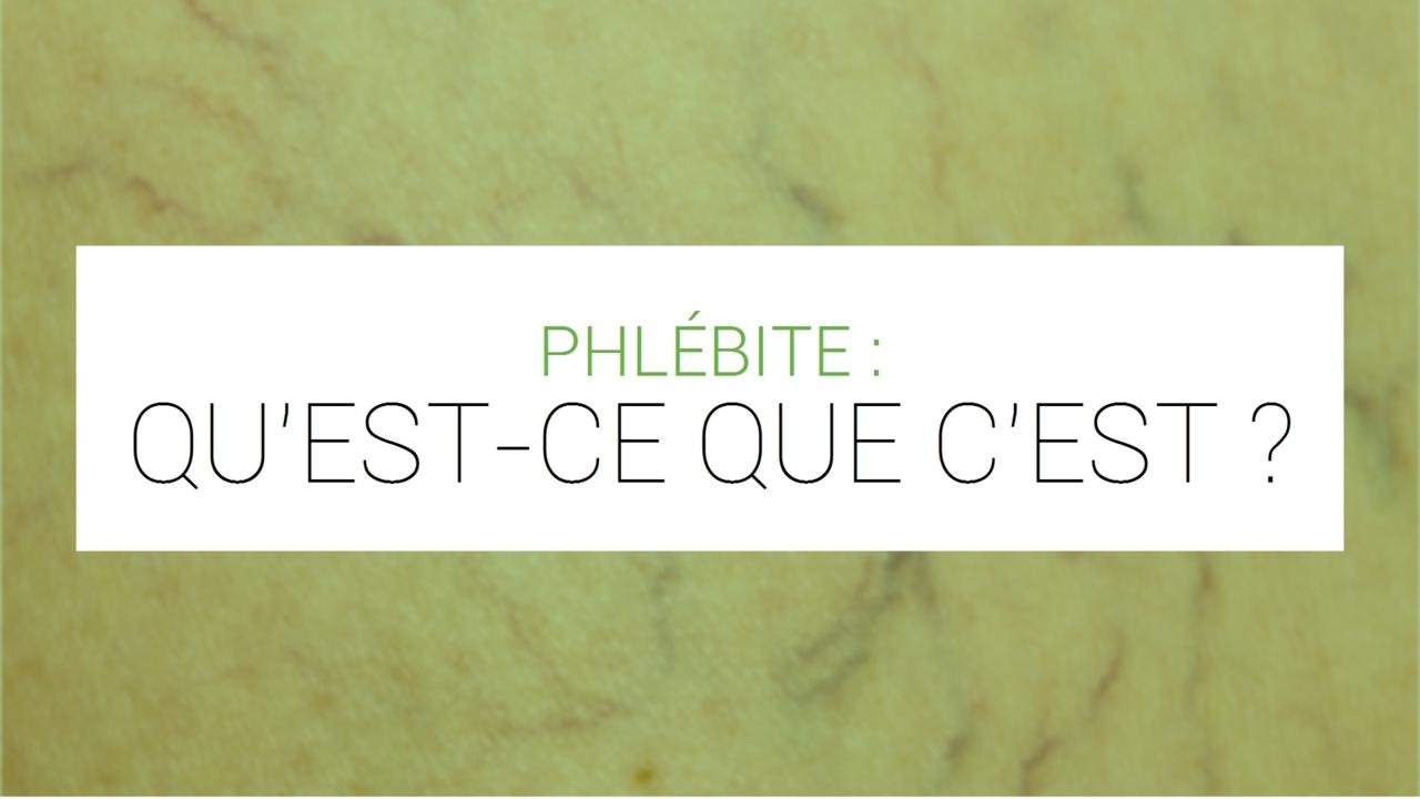 Phlébite : tout sur la thrombophlébite ou thrombose veineuse