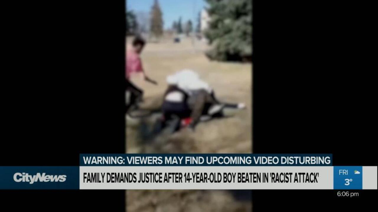 Family Demands Justice After 14 Year Old Edmonton Boy Beaten In Racist Attack